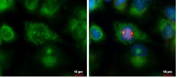Immunocytochemistry/ Immunofluorescence - Anti-SDCCAG8 antibody (ab228891)