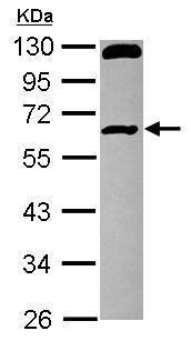 Western blot - Anti-RCBTB1 antibody (ab228896)