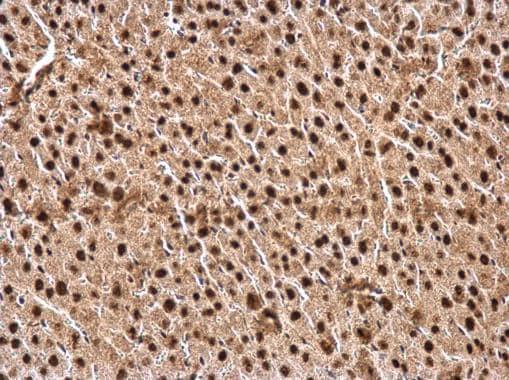 Immunohistochemistry (Formalin/PFA-fixed paraffin-embedded sections) - Anti-CTF/NFIA antibody (ab228897)