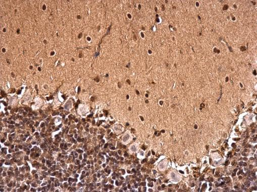 Immunohistochemistry (Formalin/PFA-fixed paraffin-embedded sections) - Anti-CTF/NFIA antibody (ab228897)
