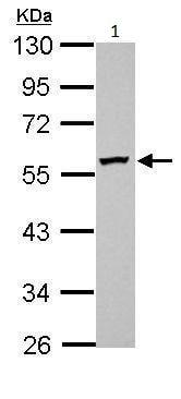 Western blot - Anti-DPH2 antibody (ab228903)