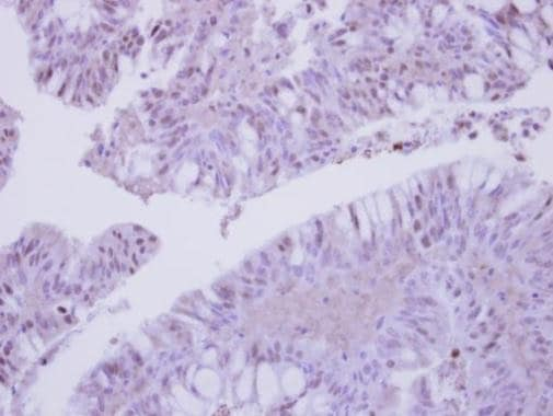Immunohistochemistry (Formalin/PFA-fixed paraffin-embedded sections) - Anti-COPS3/CSN3 antibody (ab228905)