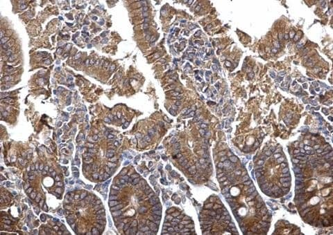 Immunohistochemistry (Formalin/PFA-fixed paraffin-embedded sections) - Anti-PLSCR4 antibody (ab228907)
