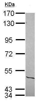 Western blot - Anti-NFIC/CTF antibody (ab228909)