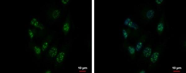 Immunocytochemistry/ Immunofluorescence - Anti-ZNF624 antibody - N-terminal (ab228914)