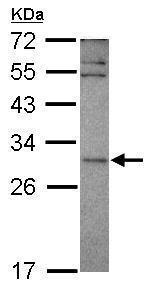 Western blot - Anti-EAP30 antibody (ab228915)