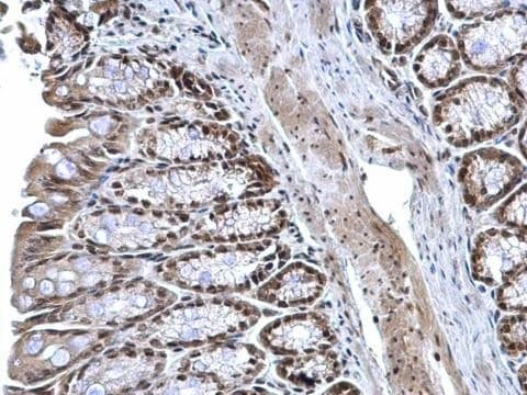 Immunohistochemistry (Formalin/PFA-fixed paraffin-embedded sections) - Anti-ZNF545 antibody (ab228946)
