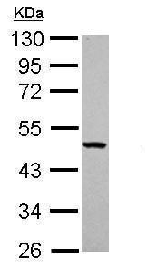 Western blot - Anti-YARS2/TyRS antibody (ab228957)
