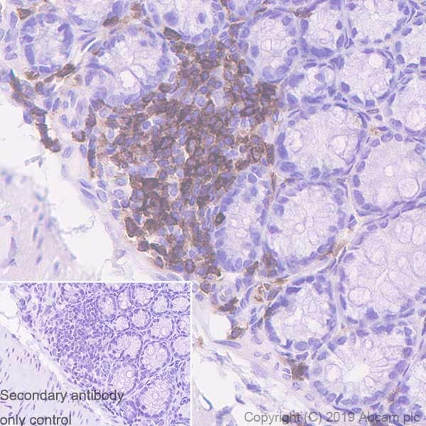 Immunohistochemistry (Formalin/PFA-fixed paraffin-embedded sections) - Anti-CD11a antibody [EPR22578-312] (ab228964)