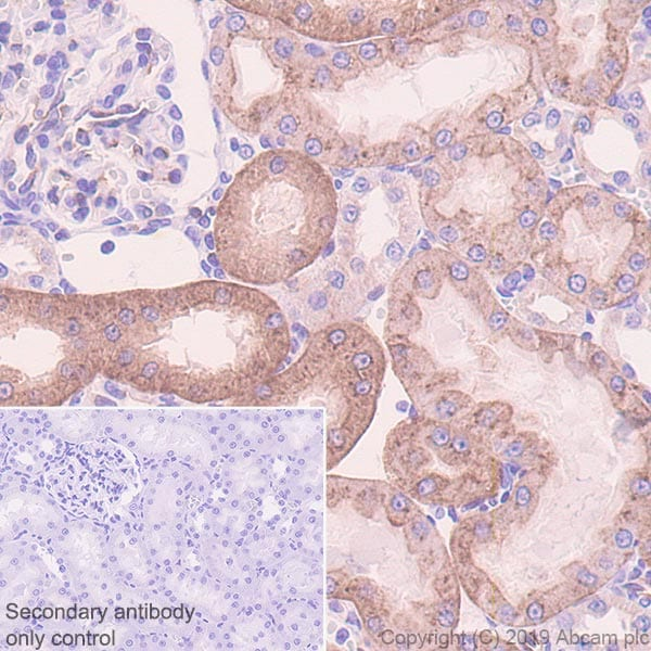 Immunohistochemistry (Formalin/PFA-fixed paraffin-embedded sections) - Anti-SIGIRR antibody [EPR22438-93] (ab228977)