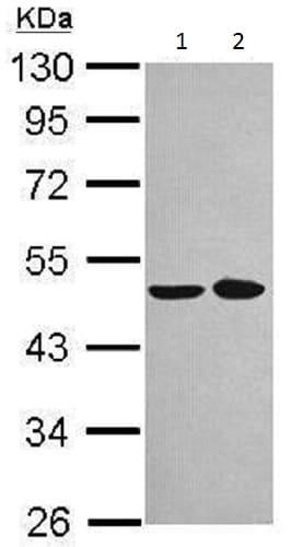 Western blot - Anti-NOB1 antibody (ab228985)