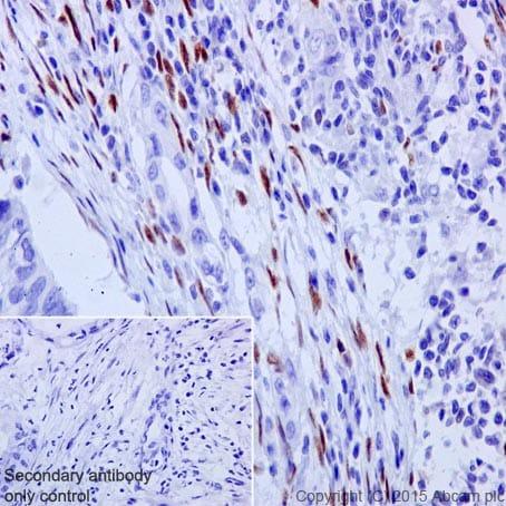 Immunohistochemistry (Formalin/PFA-fixed paraffin-embedded sections) - Anti-ZEB1 antibody [EPR17375] - BSA and Azide free (ab228986)