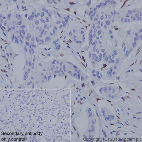 Immunohistochemistry (Formalin/PFA-fixed paraffin-embedded sections) - Anti-ZEB1 antibody [EPR17375] - BSA and Azide free (ab228986)