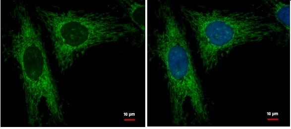 Immunocytochemistry/ Immunofluorescence - Anti-LRPPRC/GP130 antibody (ab228994)