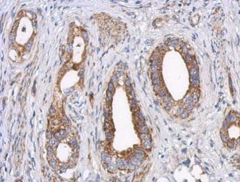 Immunohistochemistry (Formalin/PFA-fixed paraffin-embedded sections) - Anti-LRPPRC/GP130 antibody (ab228994)