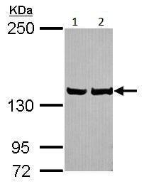 Western blot - Anti-LRPPRC/GP130 antibody (ab228994)
