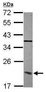 Western blot - Anti-DCTN3 antibody (ab229010)