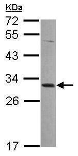 Western blot - Anti-MAGEA4 antibody (ab229011)