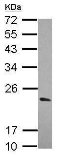 Western blot - Anti-KCHIP1 antibody (ab229013)