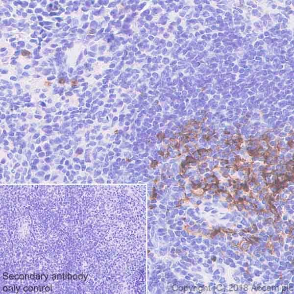 Immunohistochemistry (Formalin/PFA-fixed paraffin-embedded sections) - Anti-CD134 antibody [EPR22229-5] (ab229021)