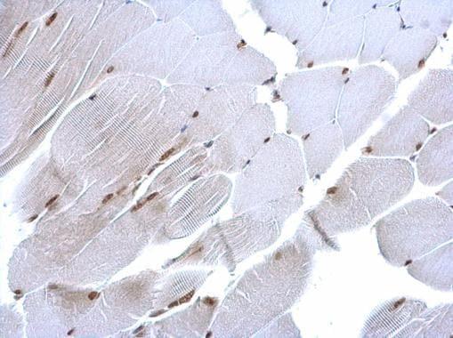 Immunohistochemistry (Formalin/PFA-fixed paraffin-embedded sections) - Anti-CHRAC-17 antibody (ab229060)