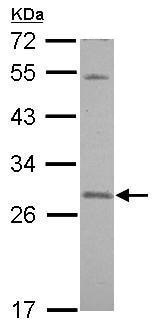 Western blot - Anti-SNAP23 antibody (ab229085)
