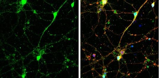 Immunocytochemistry/ Immunofluorescence - Anti-SNAP23 antibody (ab229085)