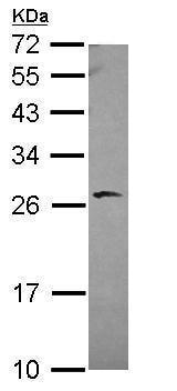Western blot - Anti-BAG2 antibody (ab229089)