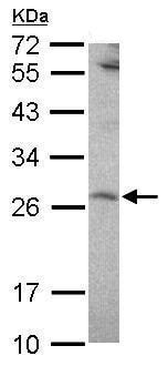 Western blot - Anti-SENP8 antibody (ab229093)
