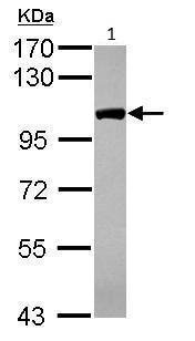 Western blot - Anti-CPSF2/CPSF100 antibody (ab229098)