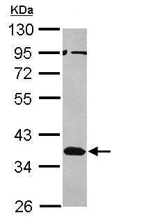 Western blot - Anti-MSI2 antibody (ab229100)