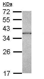 Western blot - Anti-CAPZA1 antibody (ab229106)
