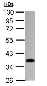 Western blot - Anti-STUB1/CHIP antibody (ab229108)