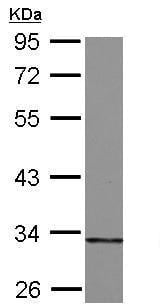 Western blot - Anti-HIBADH antibody (ab229116)