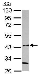 Western blot - Anti-HAPLN3 antibody (ab229118)