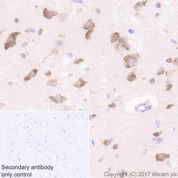 Immunohistochemistry (Formalin/PFA-fixed paraffin-embedded sections) - Anti-LYRIC/AEG1 antibody [EPR20797] - BSA and Azide free (ab229128)