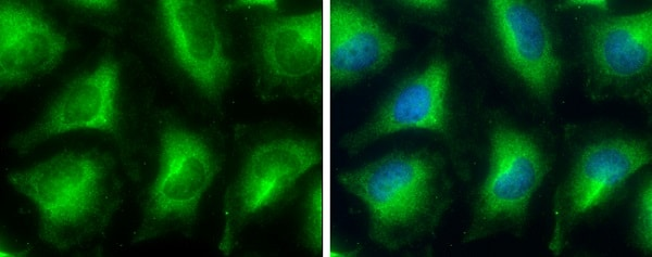 Immunocytochemistry/ Immunofluorescence - Anti-Glycerol 3 Phosphate Dehydrogenase antibody (ab229140)
