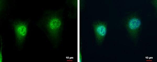 Immunocytochemistry/ Immunofluorescence - Anti-LZIC antibody (ab229149)