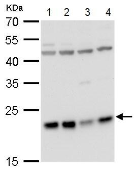 Western blot - Anti-LZIC antibody (ab229149)