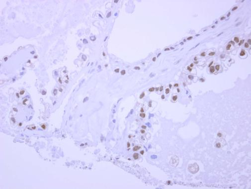 Immunohistochemistry (Formalin/PFA-fixed paraffin-embedded sections) - Anti-NPEPL1 antibody (ab229154)