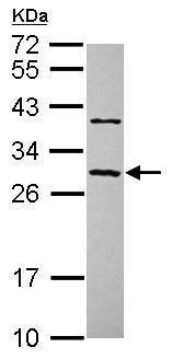 Western blot - Anti-CCDC70 antibody (ab229216)
