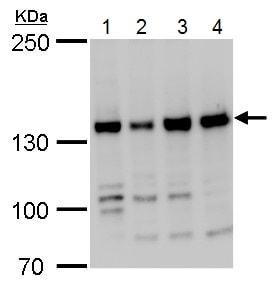 Western blot - Anti-RFC1 antibody - C-terminal (ab229229)