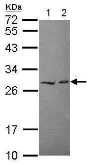 Western blot - Anti-HECTD2 antibody (ab229231)