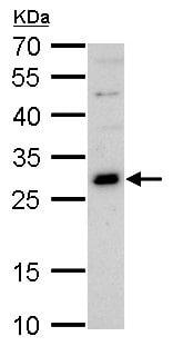 Western blot - Anti-GSH2 antibody (ab229239)