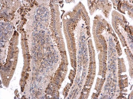 Immunohistochemistry (Formalin/PFA-fixed paraffin-embedded sections) - Anti-MATH5/ATOH7 antibody (ab229245)