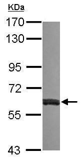 Western blot - Anti-VAM1 antibody (ab229270)