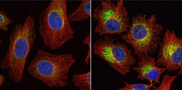 Immunocytochemistry/ Immunofluorescence - Anti-LC3B antibody - N-terminal (ab229327)