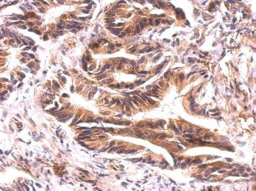 Immunohistochemistry (Formalin/PFA-fixed paraffin-embedded sections) - Anti-ATG9A antibody - C-terminal (ab229334)