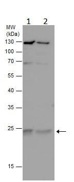 Western blot - Anti-MIS12 antibody (ab229337)