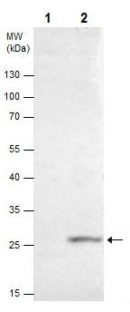 Immunoprecipitation - Anti-HOXB5 antibody (ab229345)